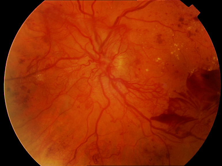 malarial-retinopathy-in-bangladeshi-adults
