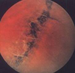 Мелкокистозная дистрофия сетчатки фото thumbnail