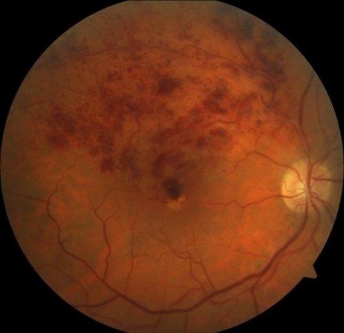 Клиника амбулаторной микрохирургии глаза - Cосудистые заболевания ...